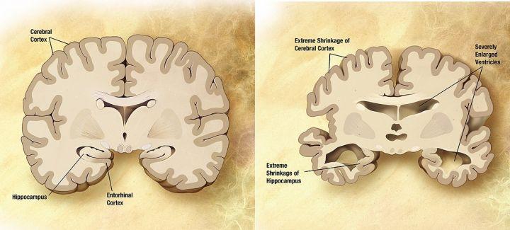 1280px-Alzheimers_disease_brain_comparison.jpg