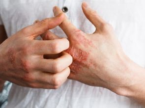 မိုးတွင်းကာလမှာ မှိုရောဂါတွေကို ဂရုစိုက်ကြမယ်