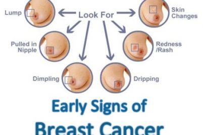 Breast-Cancer-Symptoms.jpg