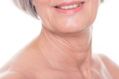 Neck-wrinkles-e1509694676130.jpg
