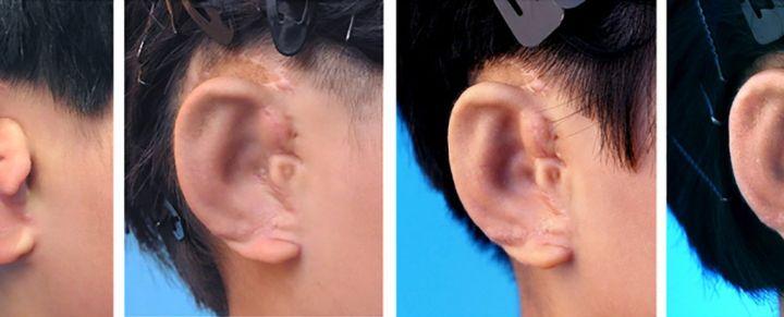 grow-ears-1_1024.jpg