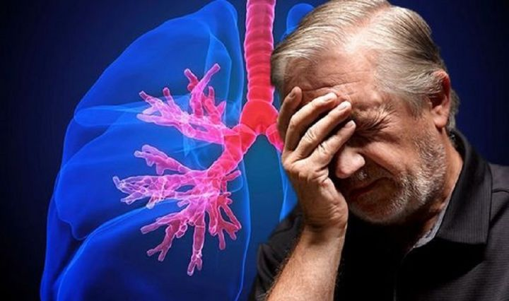 lung-cancer-finger-clubbing-1065704.jpg