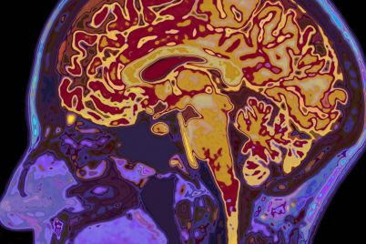 stress-trauma-the-brain-cannabis-1280x800.jpg