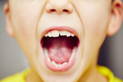 teeth-P6VGYWY.jpg