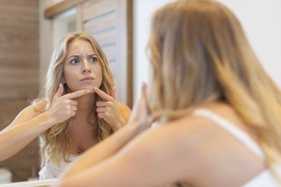 woman-acne.jpg