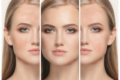 woman-before-and-after-treatment-PM4C9MS.jpg