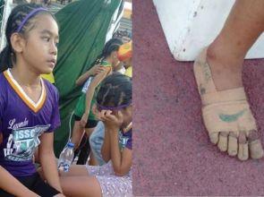 ပတ်တီးနဲ့ ပြုလုပ်ထားတဲ့ဖိနပ်နဲ့သာ အပြေးပြိုင်ပြီး ဆုတံဆိပ်တွေရရှိခဲ့တဲ့ အားကစားသမားလေး